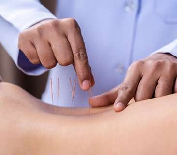 ORTHOPEDIC ACUPUNCTURE/SPORTS ACUPUNCTURE​